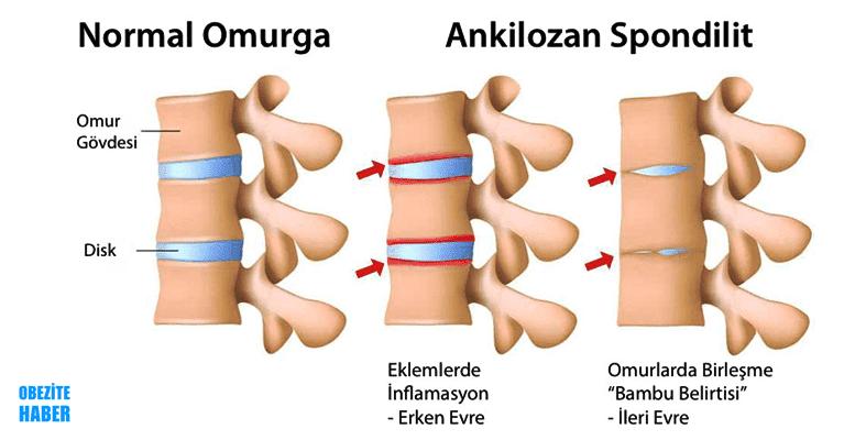 ankilozan spondilit as hastalığı nedir belirtileri nedenleri