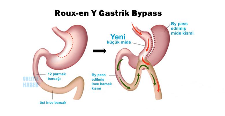 Roux EN Y Gastrik Bypass Ameliyatı Nedir?