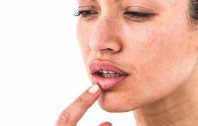 Dudak Şişmesi Neden Olur? Nasıl Tedavi Edilir?