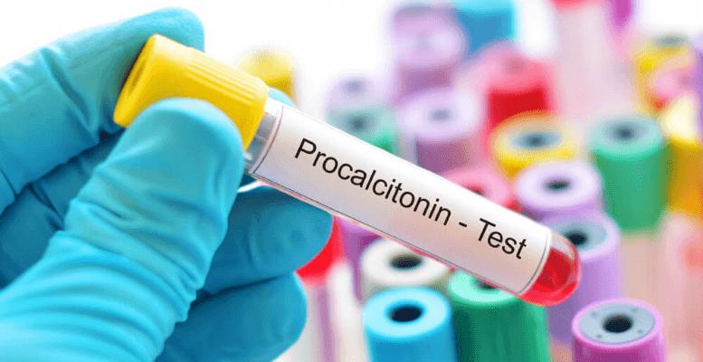 Prokalsitonin (PCT) Nedir? PCT Kaç Olmalıdır? PCT Yüksekliğinin Nedenleri