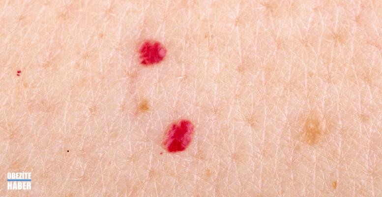 Sedef Hastalığı Kırmızı Lekelere Neden Olur mu?