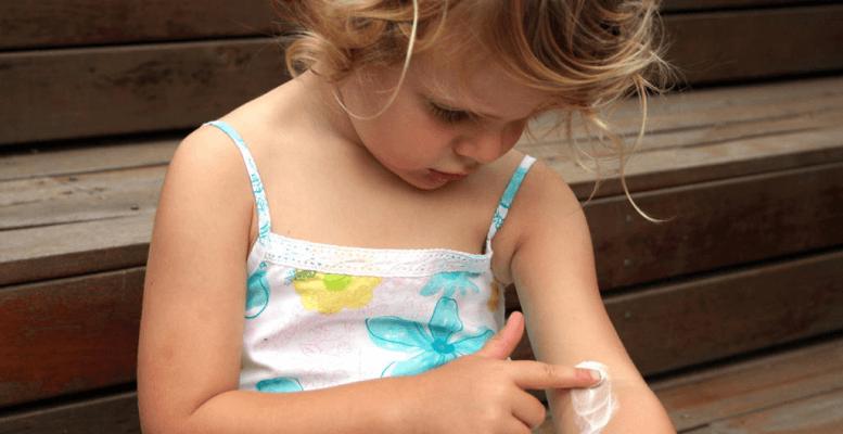 Çocuklarda Kaşıntı İçin Doğal Tedavi Yöntemleri
