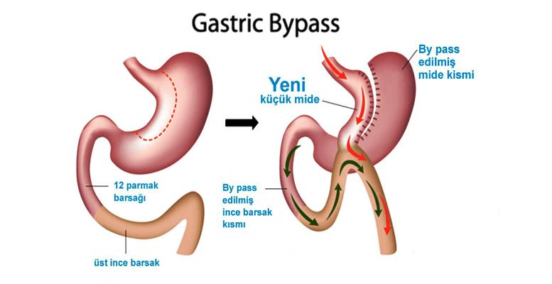 Gastrik Mide Bypass Nedir?