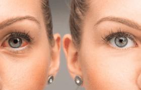 Göz Nezlesi Ne Demek? Nedenleri, Belirtileri ve Tedavisi Ne?