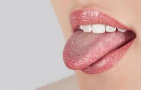 Dilde Siyahlaşma ve Koyulaşma Nedenleri ve Tedavisi Nedir?