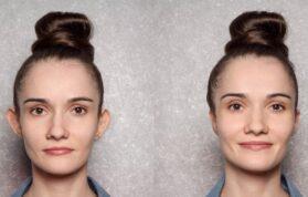 Kepçe Kulak Ameliyatı (Otoplasti) Nedir?